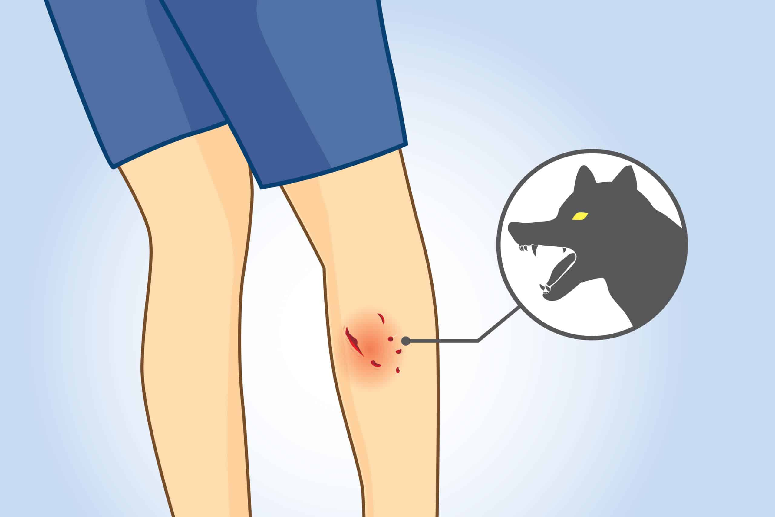 What You Should Do After A Dog Bite In Houston?