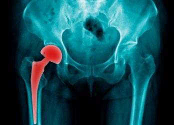 Hip Replacement Gets Infected