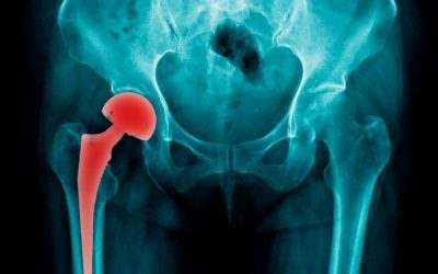 Can I Sue If My Hip Replacement Gets Infected?