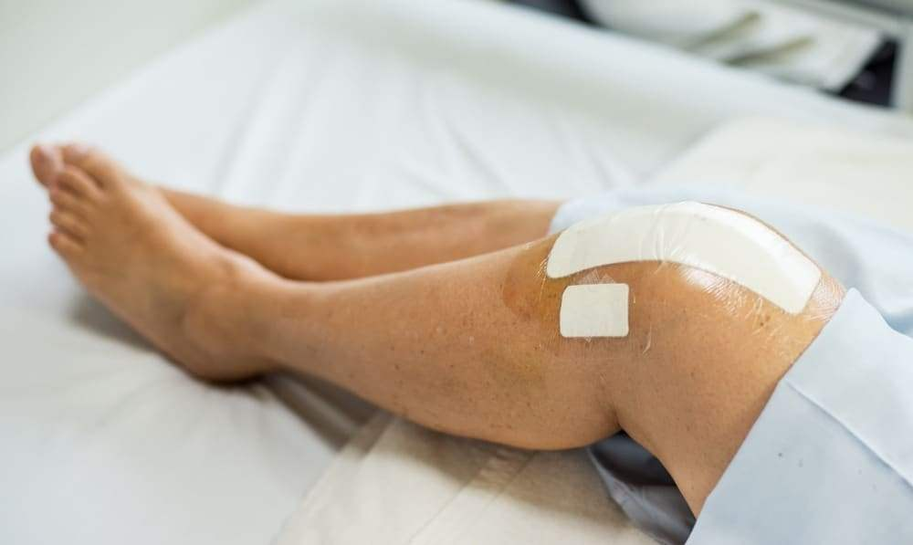 Knee Replacement Gets Infected