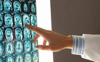 Why Do Traumatic Brain Injury Claims Have Such Large Verdicts & Settlements?