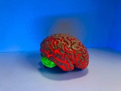 San Antonio Traumatic Brain Injury Lawyer