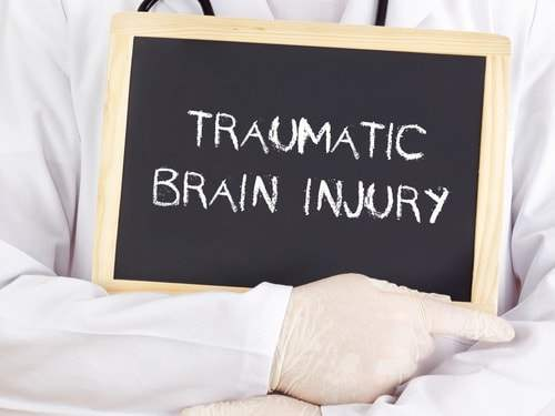 Traumatic Brain Injury Lawyer in Huntsville